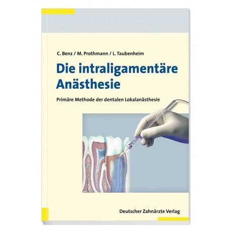 Die intraligamentäre Anästhesie