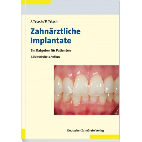 Zahnärztliche Implantate